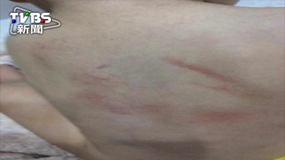 男嬰背部傷家屬控虐童  公托:非人為_新竹婚宴會館